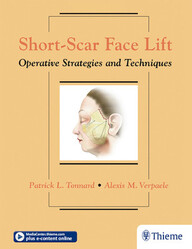 Short-Scar Face Lift: Operative Strategies and Techniques